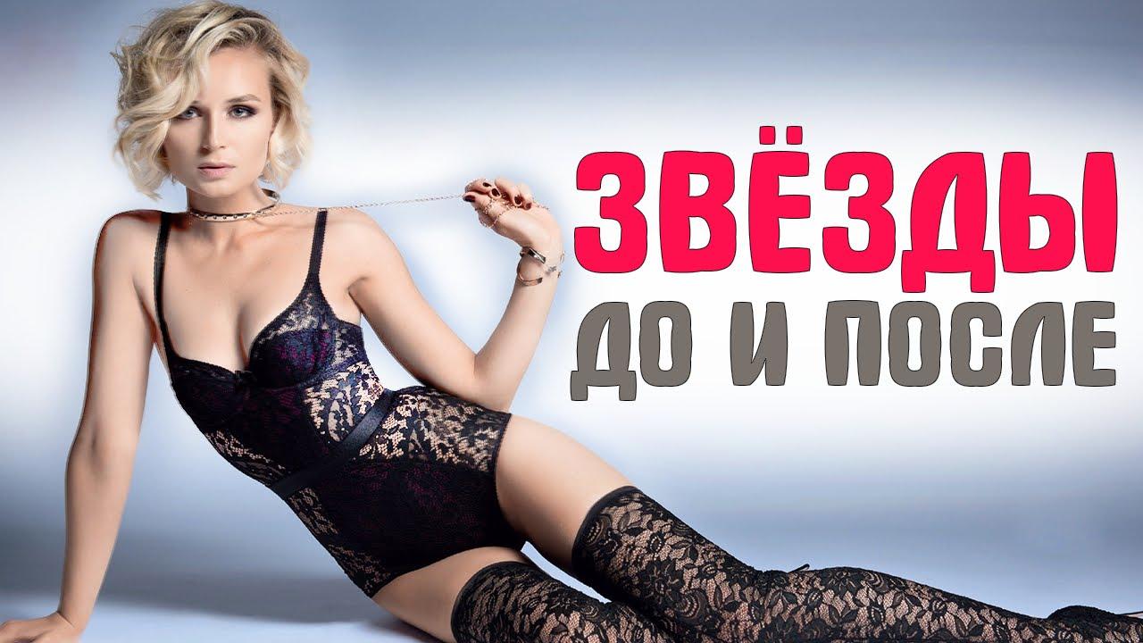 -10-российских-звезд-которые-сильно-похудели