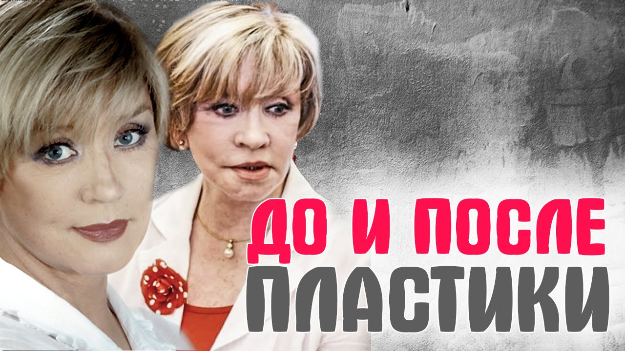 -Малиновская-Роза-Сябитова-и-другие-Российские-звезды-до-и-после-пластики