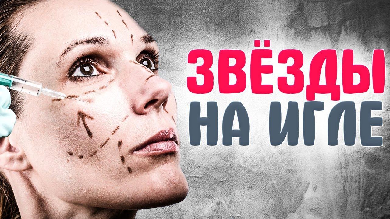 -ШОУ-БИЗНЕСА-которые-ПЕРЕСТАРАЛИСЬ-С-ФИЛЛЕРАМИ