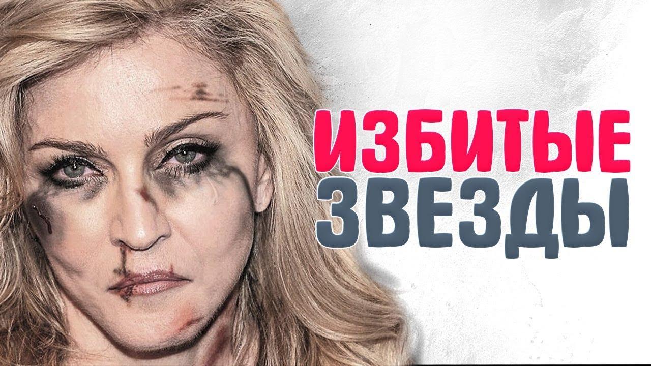 -которых-БИЛИ-МУЖЬЯ.-янебоюсьсказать-Международный-день-против-насилия-над-женщинами